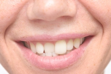 Why We Have Crooked Teeth and How to Treat Them?