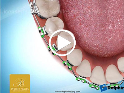 Emergency Care | Perfect Smiles Orthodontics