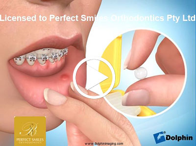Orthodontic Wax