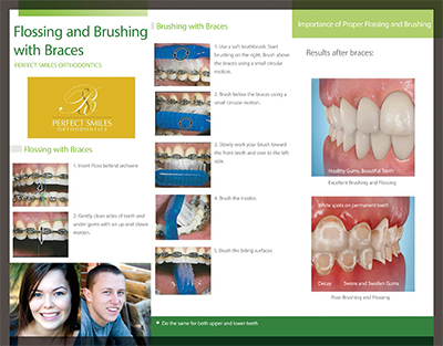 Flossing and Brushing Braces